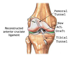 Picture of Repaired ACL